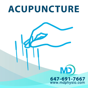 Acupuncture Mount Dennis Weston Toronto